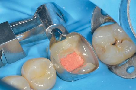 Journée « L'étanchéité coronaire, clé de la pérennité de la dent »