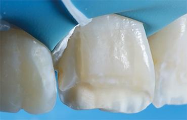 Évolutions ou révolutions : trucs et astuces en dentisterie esthétique