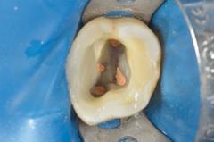 Reconstitution pr�-endodontique : recourir au collage d�s que possible