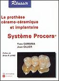 La prothèse ceramo-céramique et implantaire : Système Procera®