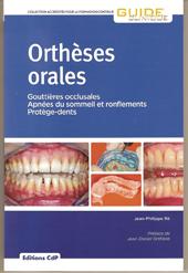 Orthèses orales
