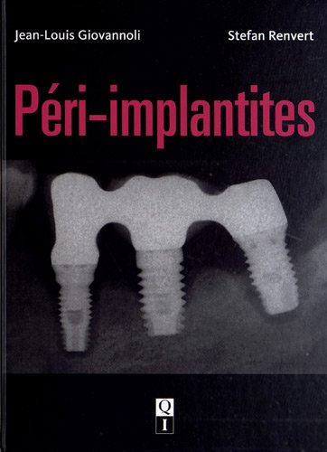 Péri-implantites