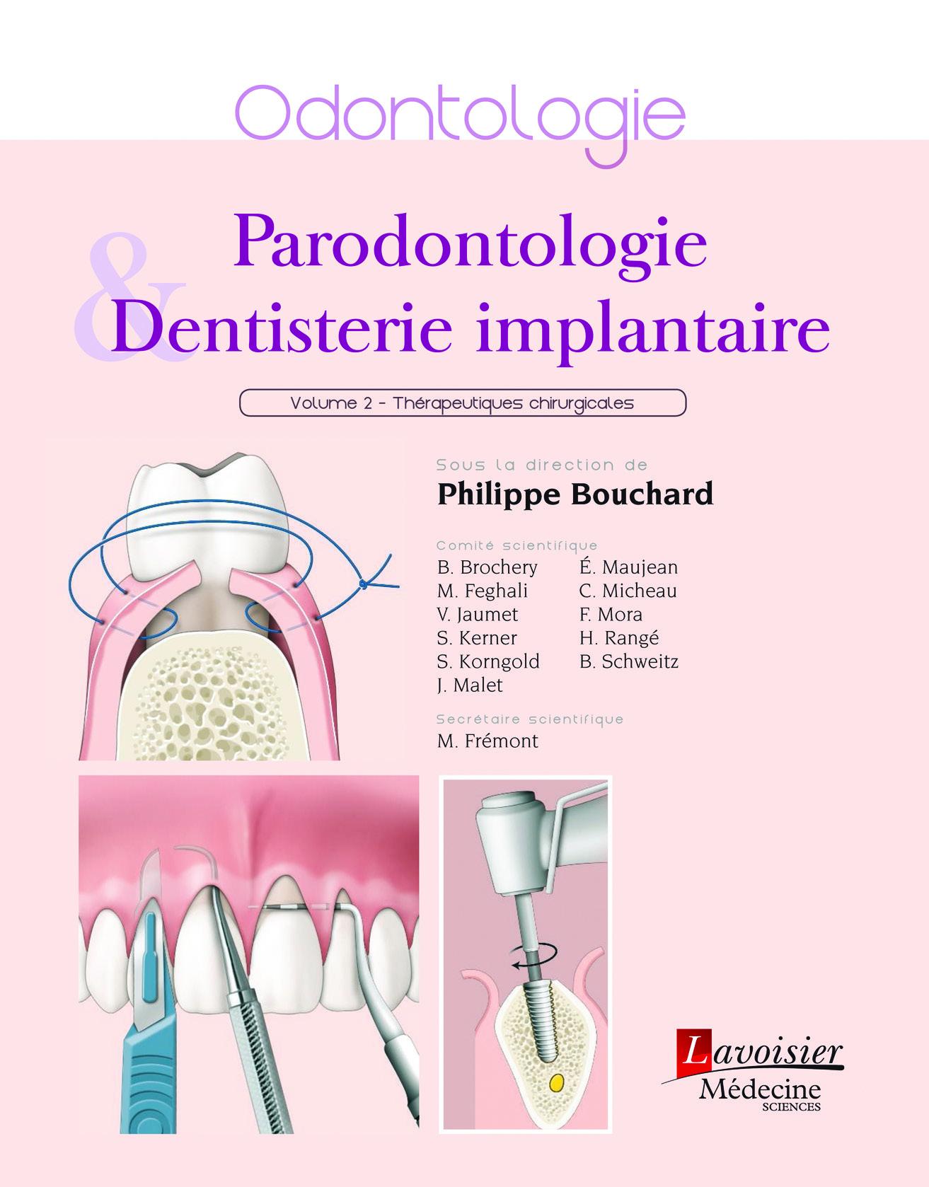 Parodontologie et dentisterie implantaire, volume 2 : Thérapeutiques chirurgicales