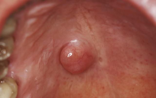 Début du cancer de la bouche