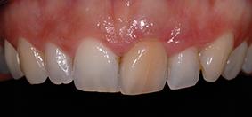 dentisterie esthétique fig.2