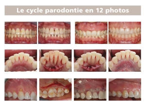 le cycle parodontie en 12 photos