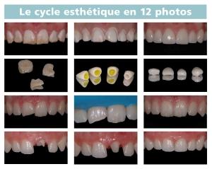 le cycle esthétique en 12 photos