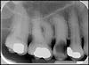 radiographie 1