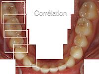 4- Principe de la prise d'empreinte optique par « corrélation ».