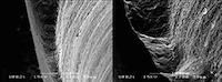 4. Les matériaux ont une aptitude différente à l'usinage. Ici, on observe une arête proximale fine usinée en composite (Lava™ Ultimate, 3M Espe) à gauche et la même arrête usinée en céramique (Empress® CAD, Ivoclar Vivadent). La céramique étant fragile, les bords fins peuvent se fracturer. Mais elle présente des avantages en ce qui concerne d'autres propriétés (biocompatibilité…), et un compromis est donc nécessaire.