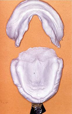 1- Empreinte au plâtre : simple de lecture et utilisable en prothèse implantaire.