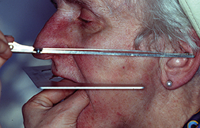 2- Empreinte au plâtre : simple de lecture et utilisable en prothèse implantaire.