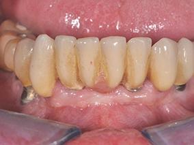 3 - Mucosite péri-implantaire. État initial.