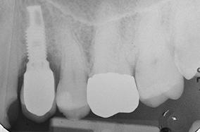 5 - Péri-implantite diagnostiquée à trois ans lors d'un saignement au sondage.