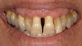 3 -  Présence d'une parodontite.