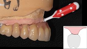 7 - Faciliter la maintenance Implantaire.