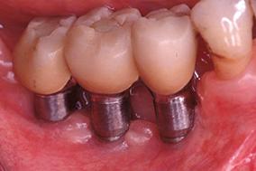 1 & 2 - Suppression de l'inflammation des tissus péri-implantaires après amélioration de l'hygiène.