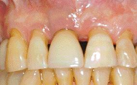 3 & 4 - En phase de réévaluation, si persistance de la lésion, résultat obtenu après curetage chirurgical avec lambeau d'accès.