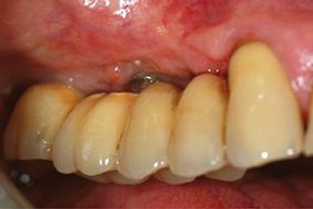5 & 6 - Amélioration de l'état gingival péri-implantaire obtenue après modification de la structure de contact muqueux permettant l'utilisation efficace de brossettes.