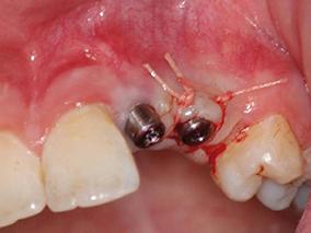 6 - Pose des bouchons de protection et de cicatrisation après ostéointégration dans la technique en deux temps (praticien chirurgien).