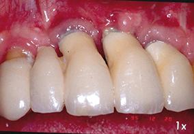 8 - Échec dû à une mauvaise interprétation des études pré-implantaires et une certaine négligence au niveau de l'hygiène.