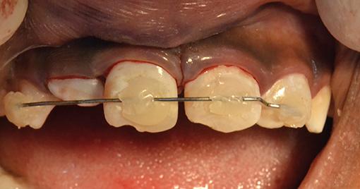 TP 5  – Pédodontie