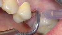 n°1 Utilisation du piezotome pour sectionner (débrider) les fibres desmodontales et parodontales.