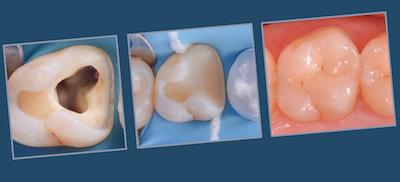 L'étanchéité coronaire, clé de la pérennité de la dent