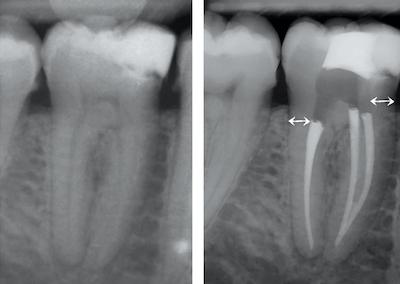 illustration 2 dent dévitalisée par rapport à une dent vitale Dr Drossart
