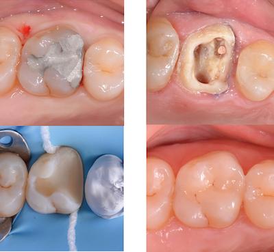 illustration 4 assurer la pérennité de la dent Dr Drossart