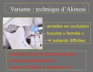 2 : Indications et risques liés à l'utilisation de la technique d'Akinosi.