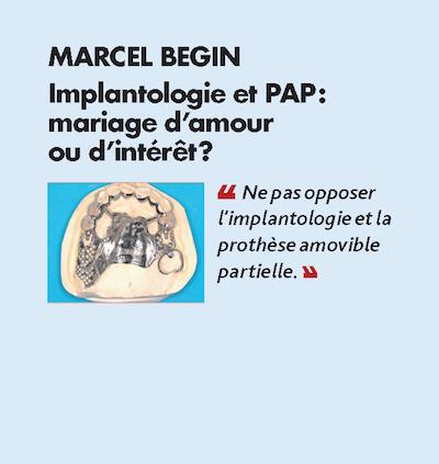Thème n°4 par MARCEL BEGIN > Implantologie et PAP :mariage d'amour ou d'intérêt ?
