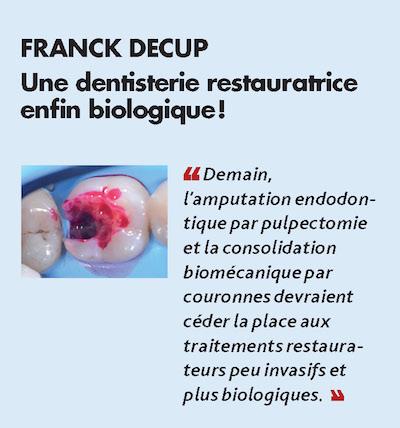 Thème n°2 par FRANCK DECUP > Une dentisterie restauratrice enfin biologique !