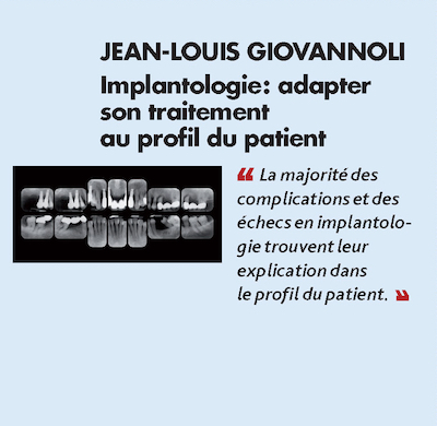 Thème n°10 par JEAN-LOUIS GIOVANNOLI > Implantologie : adapter son traitement au profil du patient