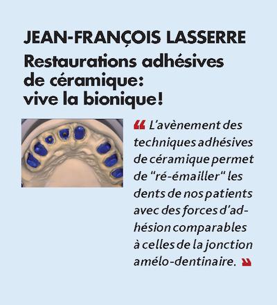 Thème n°7 par JEAN-FRANÇOIS LASSERRE > Restaurations adhésives de céramique : vive la bionique !