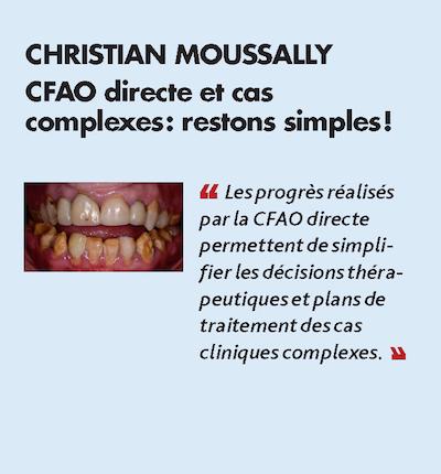 Thème n°5 par CHRISTIAN MOUSSALLY > CFAO directe et cas complexes : restons simples !