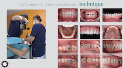 L'ensemble des photos endobuccales pour un diagnostic complet fait autour de 12 photos avec des réglages et un positionnement du praticien bien précis. Ces photos peuvent servir notamment à communiquer largement avec le patient.
