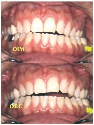 L'occlusodontie