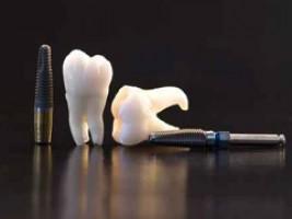 Prothèse sur implants