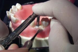 Accédez à l'implantologie par la pratique