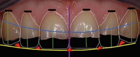 Cycle long en dentisterie esthétique 2015