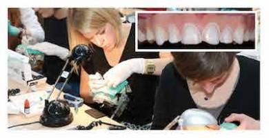 Cycle long en dentisterie esthétique 2016