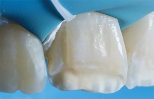 Evolutions ou Révolutions : Trucs et astuces en dentisterie esthétique