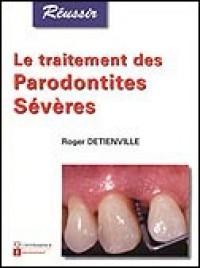 Le traitement de parodontites sévères