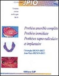 Prothèse amovible complète - Prothèse immédiate - Prothèses supra radiculaires et implantaires