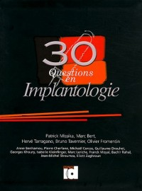 30 questions en implantologie
