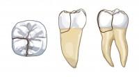 Endodontie - Savoir détecter les Fêlures et les Fractures verticales